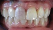 Single-Tooth-Internal-Bleaching-Teeth-Whitening-Dental-Implants-Before-Image