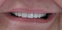 Smile-Transformation-Teeth-Whitening-After-Image
