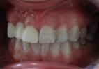 A-Challenging-Case-Dental-Bridge-Before-Image