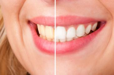 Before and after results of teeth whitening in Bangor, ME