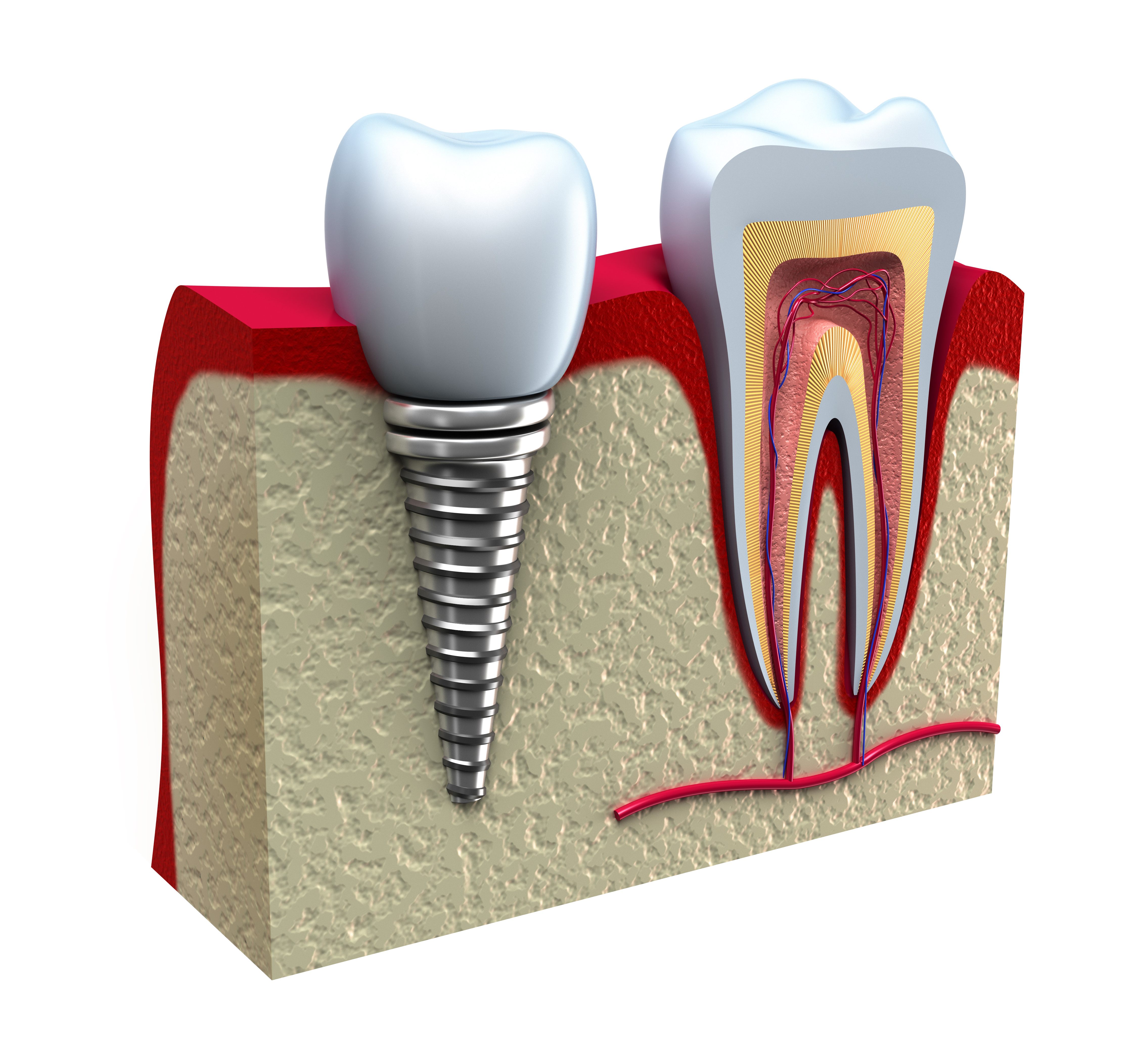Dental Implants Bangor ME