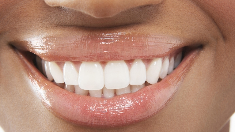 White Dental Veneers | Bangor ME