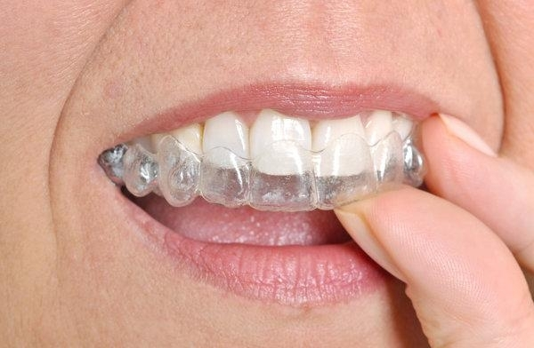 Straighten Teeth With Invisalign | Bangor ME