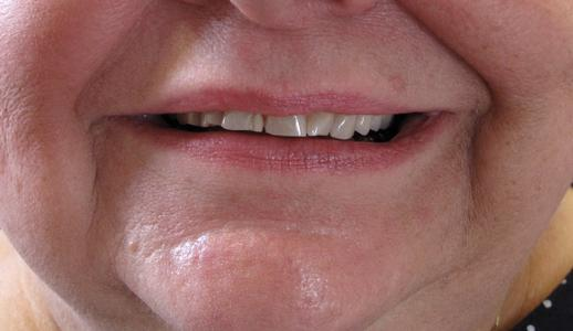 Before Teeth Whitening Image | Bangor ME Dentist