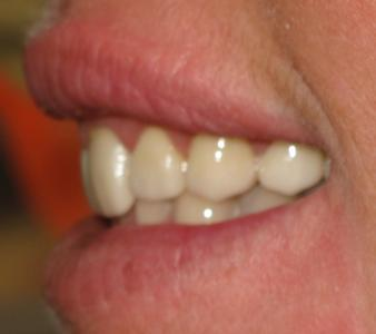 After Dental Bridge Image | Maine Family Dental Practice