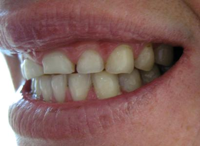 Dental Bridge Before | Maine Family Dental Practice