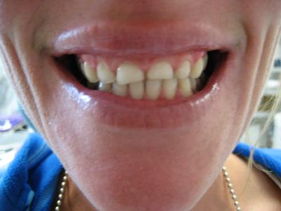 Before Dental Crown | Bangor ME Dentist