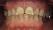 Dental-Crowns-to-Repair-Chipped-Front-Teeth-Before-Image