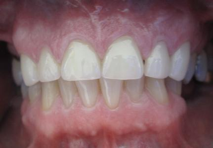 Dental Crowns to Repair Chipped Front Teeth