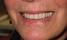 woman smiling after dental crowns | bangor me dentist