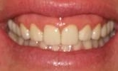 After Dental Bridge Work | Bangor ME Dentist