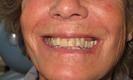 woman smiling before dental crowns | bangor me dentist