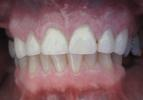 Dental-Crowns-to-Repair-Chipped-Front-Teeth-After-Image