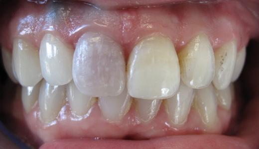 Dentist Bangor Me Smile Gallery Single Tooth Internal Bleaching